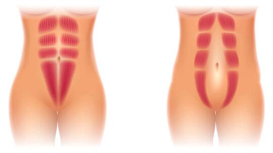 Delte mavemuskler kan være et stort problem